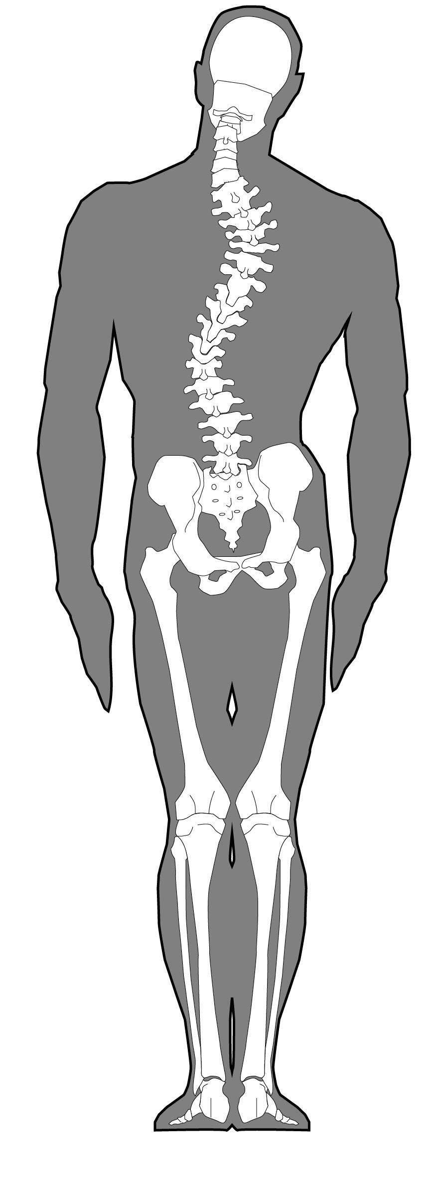 <span>3.</span>骨格による腰痛