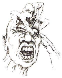 <span>5.</span>頭痛の対処法(群発性頭痛)