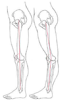 <span>4.</span>反張膝