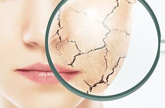 <span>2.</span>乾燥による肌への影響