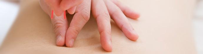鍼灸治療(妊活鍼灸)